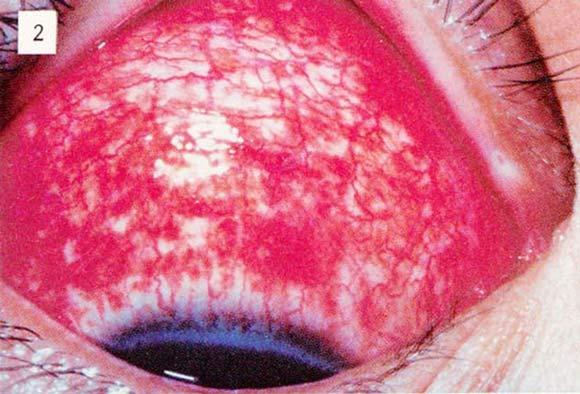 コロナ 目 が 充血